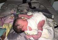 Vừa chào đời, bé sơ sinh đã khiến cả êkip mổ sửng sốt, sản phụ còn bất ngờ hơn khi nhìn thấy con