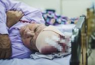 Mổ lấy được cục máu đông gây đột quỵ dài gần 10cm