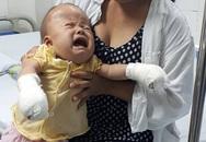 Tiếng khóc xé lòng của bé 17 tháng tuổi bị dị dạng