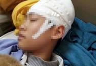 Xôn xao giáo viên thể dục tát học sinh bị tụ máu đầu