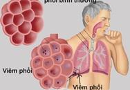 Mùa đông là bị viêm phổi, tại sao?