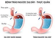 Trào ngược dạ dày - thực quản, chữa thế nào?