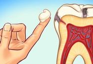 Nha sĩ tiết lộ 10 cách đơn giản để ngăn ngừa sâu răng