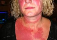 Người phụ nữ 42 tuổi bị dị ứng khiến ai nhìn cũng khiếp sợ chỉ vì có thói quen này vào buổi đêm