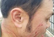 Đề nghị khởi tố 'cò' taxi đánh nhân viên sân bay Nội Bài gãy răng
