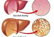 Những dấu hiệu điển hình cảnh báo bạn bị gan nhiẽm mỡ, cần điều chỉnh ngay chế độ ăn