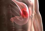 Tự uống thuốc trị đau dạ dày vì không biết mắc ung thư