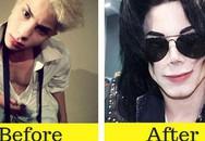 Từ bỏ ngoại hình thư sinh, thanh niên chi 700 triệu để phẫu thuật thẩm mỹ thành Michael Jackson