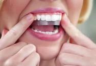 """Cẩn trọng làm đẹp """"cấp tốc"""" đón Tết bằng miếng dán làm trắng răng"""