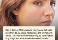 """8 dấu hiệu cảnh báo bệnh được """"khắc"""" rất rõ trên khuôn mặt của bạn"""