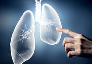 Bệnh không lây nhiễm (5): Phát hiện sớm và phòng bệnh phổi tắc nghẽn mãn tính cả ở trẻ em và người lớn
