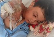 Cháu bé 11 tuổi bị cha ruột tạt nước sôi vào người gây bỏng nặng