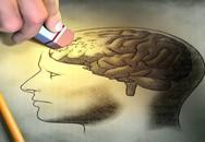 """Hãi hùng hình ảnh sán """"làm tổ"""" trong não người đàn ông ở Lào Cai"""