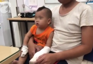 Tai nạn kinh hoàng: Người nhà thử xe máy mới mua, bé trai 1 tuổi bị đứt lìa 4 ngón tay