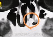 Sụt sịt 3 tháng liền, chàng trai đi khám thì phát hiện ra chiếc răng... 20 năm tuổi trong lỗ mũi