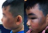 Phẫn nộ bé 8 tuổi bị đánh bầm tím mặt vì nghi trộm gà