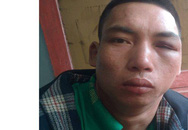 Bắc Giang: Chồng sát hại vợ dã man tại hiên nhà