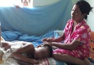 Thông tin mới nhất vụ bé trai 9 tuổi bỏng nặng từng bị bố mẹ khước từ chữa trị
