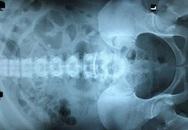 Suy thận cấp do uống lá thuốc không rõ nguồn gốc