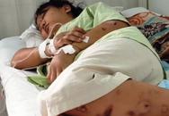 Thông tin mới nhất vụ cô gái 18 tuổi bị giam giữ, tra tấn đến sảy thai ở TP.HCM