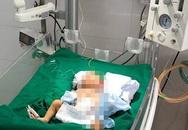 Cứu trẻ bị dị tật bẩm sinh khiến toàn bộ nội tạng lòi ra ngoài