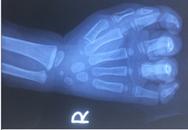 Bé 23 tháng tuổi bị đứt ngón tay do kẹt vào dây curoa máy rửa xe