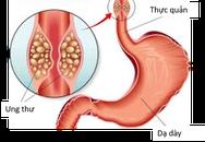 Đại tá bác sĩ Viện 108: Nhiều người Việt đang có thói quen gây ra loại ung thư phổ biến top đầu