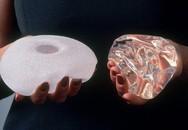 Hàng trăm trường hợp mắc ung thư sau phẫu thuật nâng ngực được phát hiện tại Mỹ
