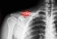 Gãy xương đòn, nên điều trị bảo tồn hay phẫu thuật?