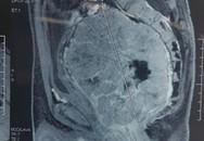 Đại tiện khó, bỗng phát hiện u siêu lớn, mắc loại ung thư ở trực tràng rất hiếm gặp