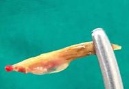 Hy hữu: Lấy xương cá dài 2cm trong hậu môn người đàn ông