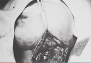Bé gái 11 tháng tuổi bị áp xe cả ổ mủ trong cổ do hóc xương cá
