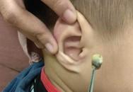 Bé trai 3 tuổi mất thính lực, bác sĩ lôi được thứ trong tai ra ai cũng rùng mình kinh sợ
