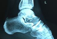 Chịu đau đớn kéo dài cả năm do chấn thương khi chơi đá bóng