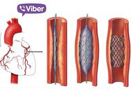 Kết nối Viber, cứu người đàn bà bị nhồi máu cơ tim trên xe