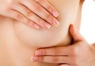 Tình cờ phát hiện ung thư vú từ biểu hiện dễ bỏ qua
