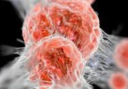 Bệnh ung thư và những con số đáng lo ngại