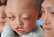 """Hai vợ chồng cùng khuyết tật vẫn ngọt ngào làm """"chuyện ấy"""", đẻ con ra ôm mặt khóc nức nở"""