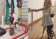 Bé gái chào đời với đôi chân gập hẳn về phía trước giờ ra sao sau 3 năm?