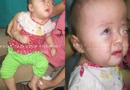 Bé gái Việt chào đời với hội chứng hẹp hộp sọ phức tạp hiếm có trên thế giới