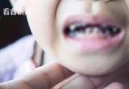 Cậu bé 3 tuổi có tới 16 chiếc răng bị mủn nát, do thói quen rất nhiều trẻ mắc phải