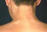 Trị lang ben có nên tránh nước, sữa rửa mặt?