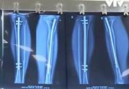 Thành công mới trong triển khai phẫu thuật kéo dài chân