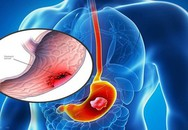 Thiếu nữ 18 tuổi đau bụng nhẹ đi khám phát hiện ung thư dạ dày giai đoạn cuối