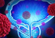 Dấu hiệu ban đầu ung thư tuyến tiền liệt