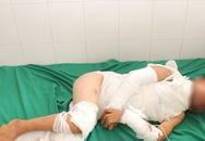 Trèo lên cột điện bắn chim, bé trai 10 tuổi bị điện giật bỏng nặng