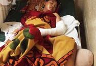Thương tâm: Thiếu nữ 16 tuổi mồ côi cha bị xe tông nguy kịch trên đường đến nhà bạn