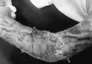 Trốn mẹ chập chững ra đường, bé trai 19 tháng bị xe tải tông dập nát cánh tay