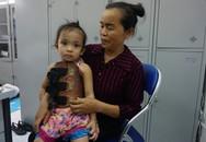 Hình ảnh mới của cô bé 4 tuổi có cột sống cong vẹo hình chữ S