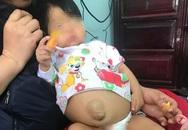 Bé gái 14 tháng tuổi bị xơ gan, bà ngoại bỏ xạ trị ung thư để cứu cháu